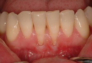 tooth sensitivity tooth problems