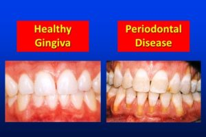 Best Dental Solutions in lucknow
