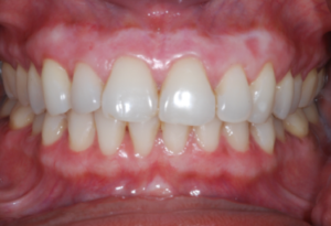 Gum Depigmentation - Realtooth Clinic in Lucknow