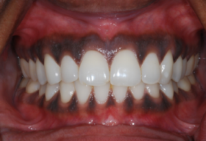Gum Despigmentation - Realtooth, Lucknow, Dental Solution