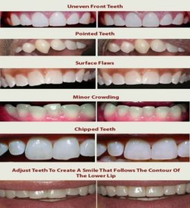 Reshaping in Teeth - Realtooth , Dentist in Lucknow