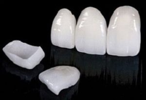 Veneers Laminate - Realtooth , Best Dentist in Lucknow