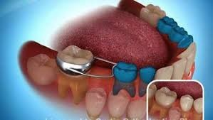 Dental Solution in Lucknow - Realtooth