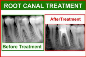 Best dental clinic in Hazratganj - Realtooth in Lucknow