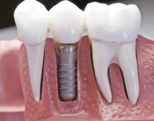 Dental Implants in Lucknow - Realtooth Lucknow