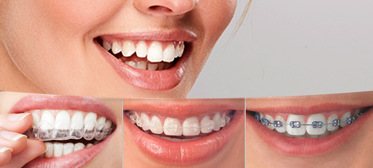 Dental-clinic-in-lucknow-Realtooth.jpg